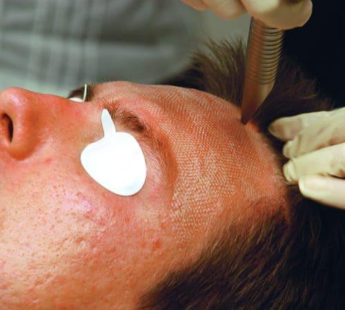 Acne Treatment in Las Vegas - SciNature Aesthetics